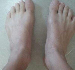 Los pies de Alino Pies Anchos