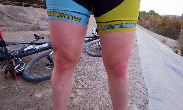 El regreso del comunitario Kronxito al ciclismo tras su última lesión